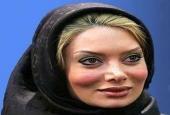 جراحی های زیبایی پر سر و صدا در بازیگران ایرانی