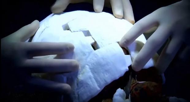پرینت سه بعدی لاک شکسته لاک پشت
