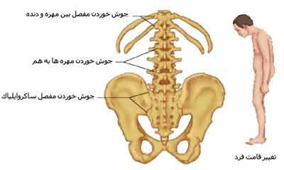 بیماری اسپونديليت آنكيلوزان:spondylitis ankylosing