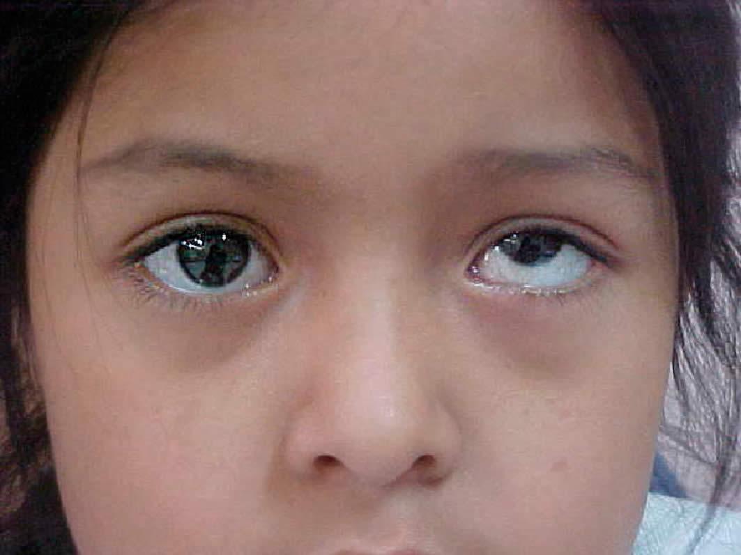 انحراف چشم : strabismus