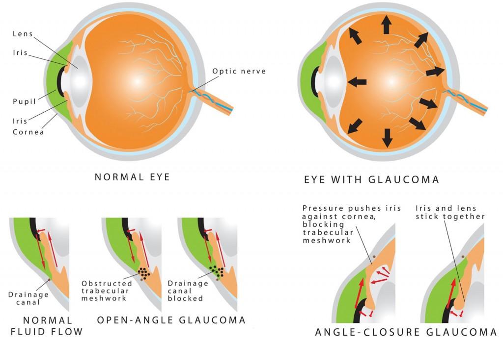 گلوکوما زاویه باز