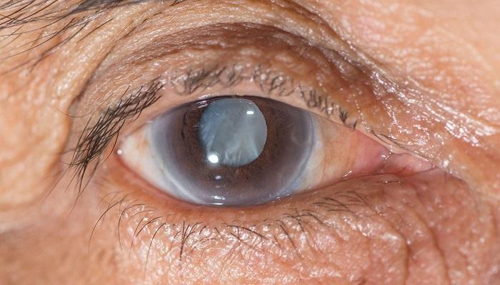 آب سياه چشم، نوع مزمن زاويه باز  Glaucoma chronic open angle