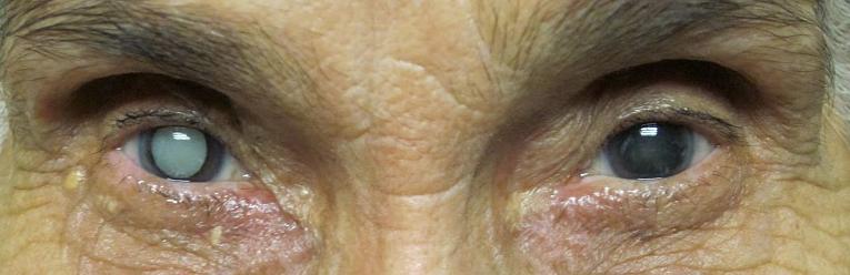ر گذشته جراح چشم عدسی را وقتی کاملاً کدر شده بود از چشم خارج میکرد