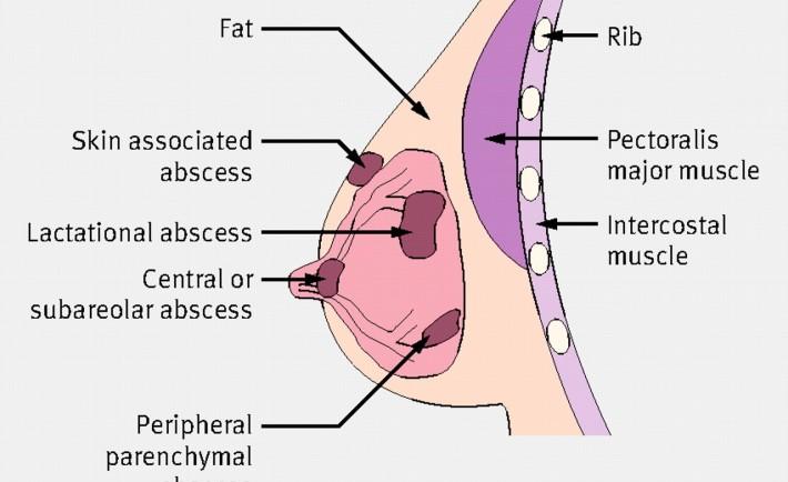 بیماری آبسه پستان  breast abscess چیست؟