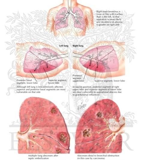 بیماری  آبسه ریه :Lung abscess