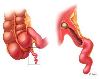 آپاندیسیت (به انگلیسی: Appendicitis)