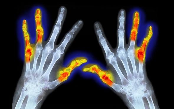 برای تخفیف درد مفصلی از گرم کردن مفصل استفاده کنید