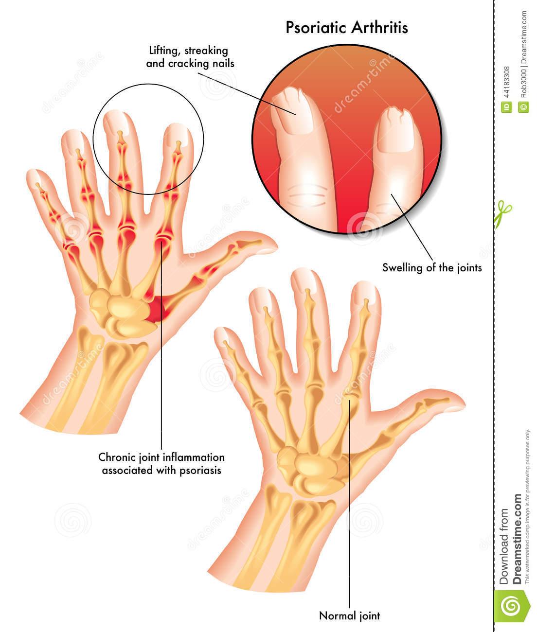 شناخت  بیماری آرتريت مرتبط با پسوريازيس:psoriatic arthritis
