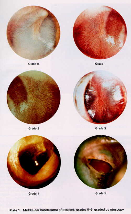 آسيب گوش مياني در اثر تغييرات فشاري  Barotitis media