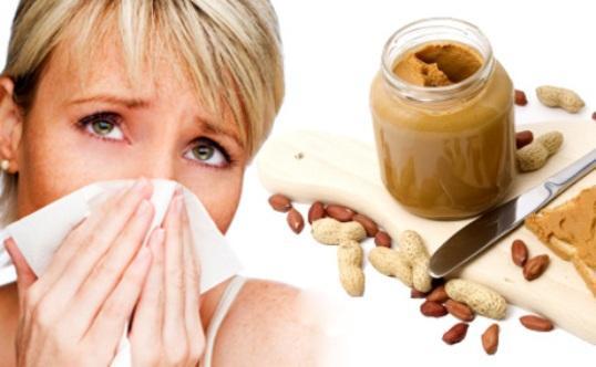 آلرژي غذايي allergy food