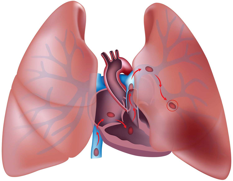 آمبولي ريه : pulmonary embolism(شناخت,علل,پیشگیری ...