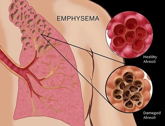 آمفيزم : Emphysema (علل,پیشگیری,دارو  و در مان...