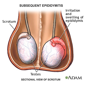 اپیدیدیمیت به التهاب مجاری اپیدیدیم (روخاگ) در دستگاه تناسلی مردانه گفته میشود