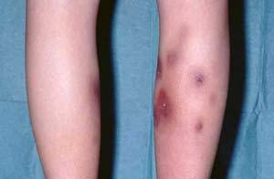 اريتم گرهي عبارت است از يك بيماري التهابي پوست و بافت زير پوست كه مشخصه عمده آن وجود گرههاي قرمز و دردناك بر روي پا، خصوصاً پوست روي استخوانهاي بزرگ ساق پا است