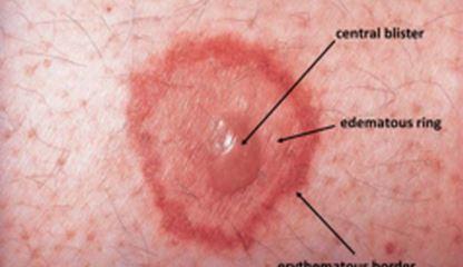 اریتم مولتیفرم (به انگلیسی: Erythema multiforme) یا قرمزشدگی چندشکل یک بیماری التهابی حاد پوست و غشاهای مخاطی است.