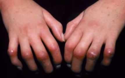 بیماری «اسکلرودرمی» (Scleroderma) نوعی بیماری نادر و پیشرونده روماتیسمی است