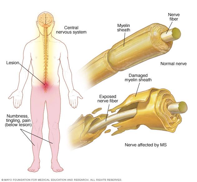 اسکلروز متعدد (اِم. اِس) یک بیماری ویروسی مسری و خفیف که باعث تورم دردناک غدد پاروتید (غدد بزاقی واقع بین گوش و فک) میشود.