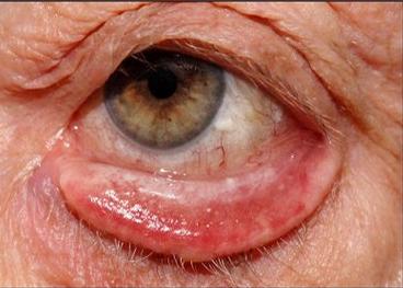 استفاده از پمادهای مرطوب کننده چشم و قطره اشک مصنوعی تا زمان جراحی، آنتیبیوتیک در صورت وجود عفونت