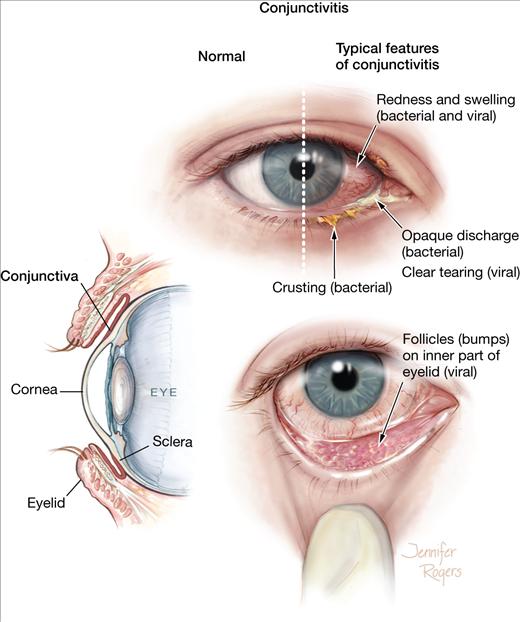 التهاب ملتحمه(علت قرمزی چشم) : Conjunctivitis  شرح بيماري:پيشگيري...