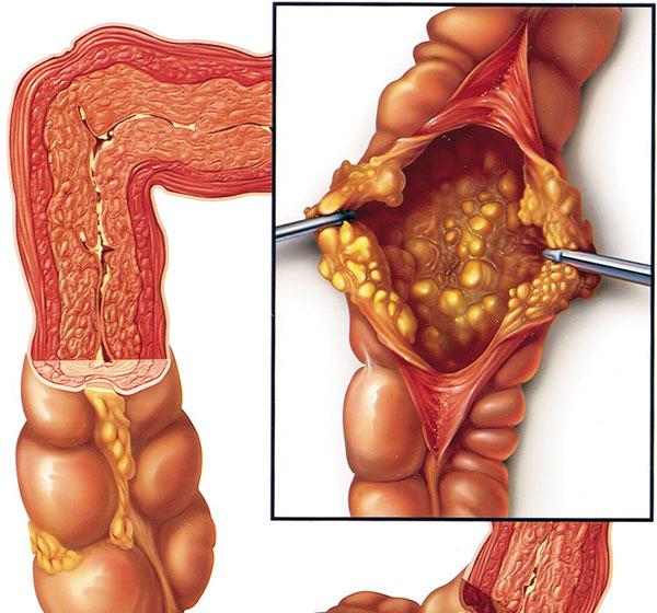 ک بیماری شدید و نادر مربوط به روده کوچک و بزرگ است