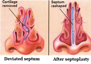 انحراف تیغه بینی ( Septal Deviation )