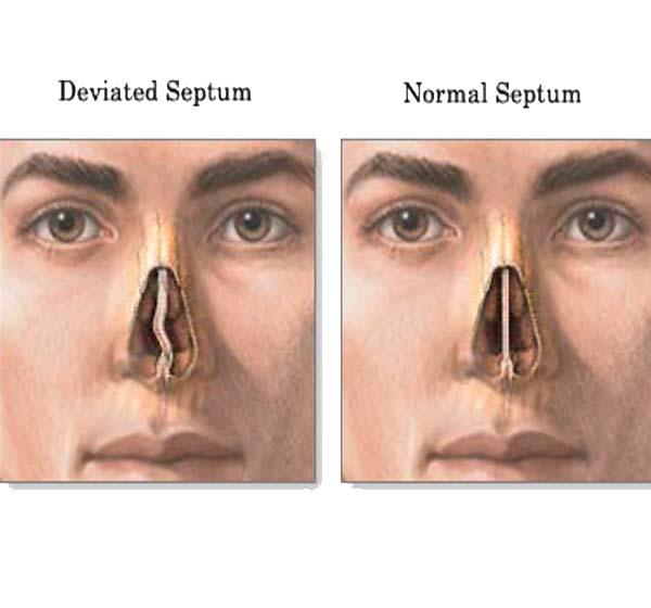 تیغه بینی دیواره ای است که فضای داخل بینی را به دو حفره مجزای راست و چپ تقسیم می کند