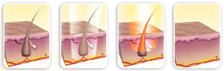 بهترین راه های از بین بردن مو های زائد بدن طبیعی و موثر