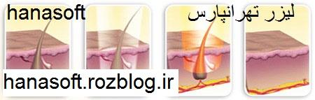 لیزر مو های زائد تهرانپارس با قیمت 30000 تومان