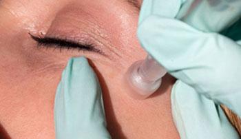 تفاوت میکرونیدلینگ با میکرودرم برای پاکسازی پوست چیست ؟
