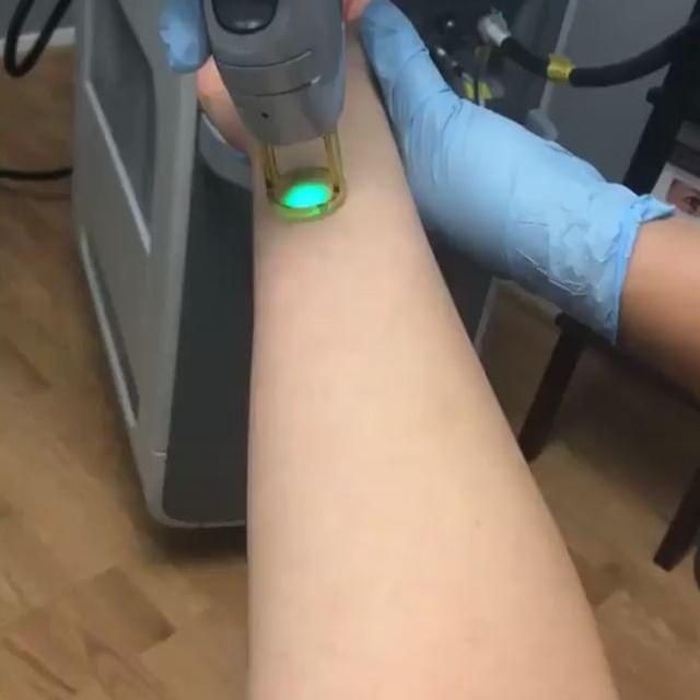 لیزر موهای زائد دست و بدن در مرکز لیزر تهرانپارس