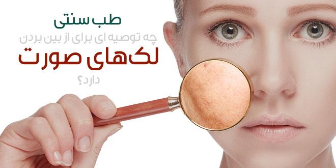 درمان لکه های روی صورت/لکه های قهوه ای سوداوی