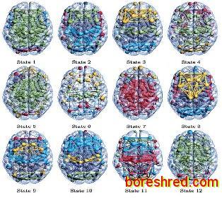 12 حالت مخفی در مغز به تازگی کشف شد