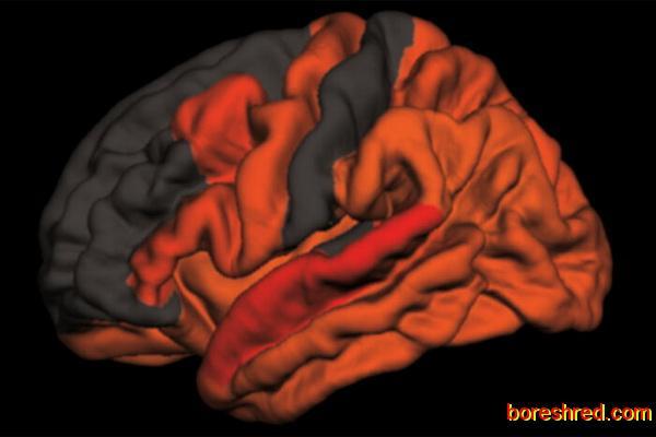 خطر کم خوابی در ابتلا به آلزایمر