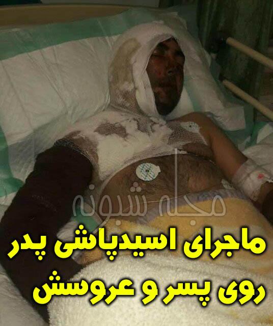 اسید پاشی پدر روی پسر و عروسش در خلخال
