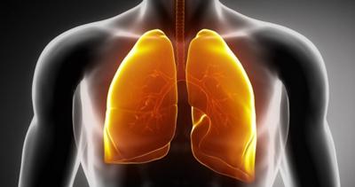 نشانههای سرطان ریه، خستگی مفرط