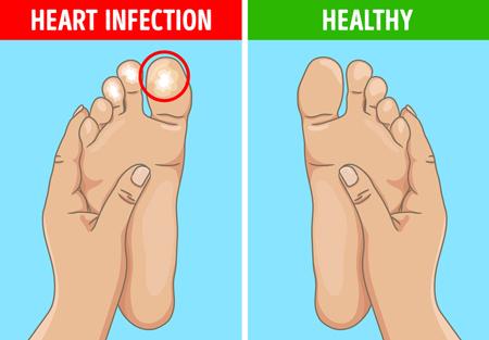 درمان سردی پاها،سندرم انگشتان پا