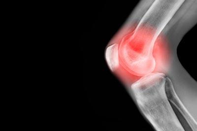 آرتروز زانو،درمان آرتروز زانو