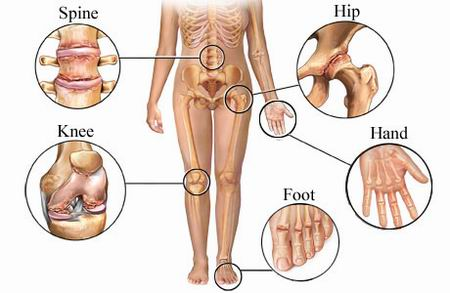 دلیل صدای مفصل چیست + چطور از صدای مفصل پیشگیری کنیم یا درمان نماییم