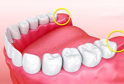 خطر کشیدن دندان عقل، فواید دندان عقل