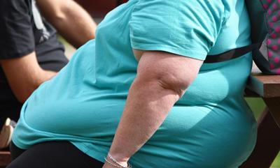 درمان بدون جراحی چاقی،انواع جراحی چاقی