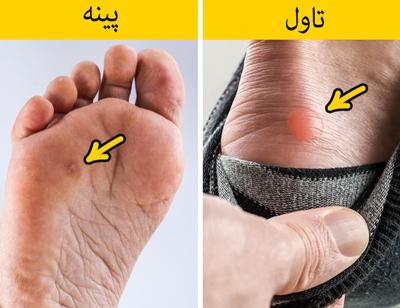 تاول و پینه پا، تاول پا