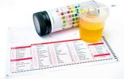 عفونت ادراري در کودکان،علائم و درمان