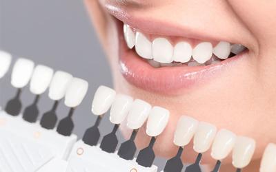 آیا کامپوزیت دندانف انواع مختلفی دارد