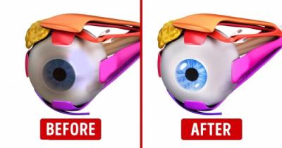 ورزش چشم برای تقویت بینایی،ورزش مخصوص ماهیچه چشم
