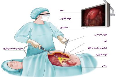تفاوت جراحی باز با لاپاراسکوپی ،شیوه انجام جراحی لاپاراسکوپی