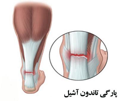 پارگی تاندون آشیل،ساق پا و تاندون آشیل