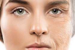 روش هاي پيشگيري از افتادگي پوست