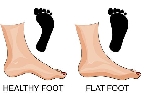 افزایش قوس کف پا ، صافی کف پا
