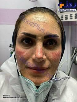 چهره يک پرستار ايراني در روزهاي کرونايي
