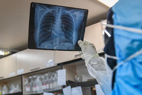 اخبار,اخبار پزشکی,مشکلات تنفسی بیماران کرونایی